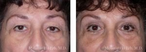 Small combined before and after image of Dr. Melanie Ho Erb's patient of Upper Blepharoplasty