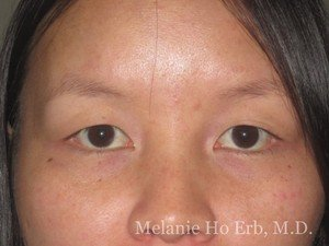Before Photo of Asian Blepharoplasty Patient 01.1 of Dr. Melanie Ho Erb