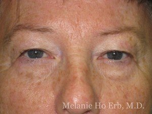 Patient Photo 01.1 Upper Blepharoplasty Before of Dr. Melanie Ho Erb