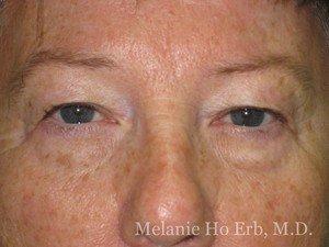 Patient Photo 01.1 Upper Blepharoplasty Before of Dr. Melanie Ho Erb