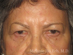 Patient 01.1 Brow Lift Before of Dr. Melanie Ho Erb