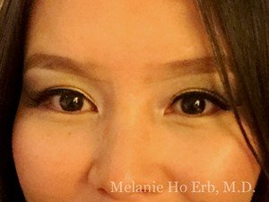 After Photo of Asian Blepharoplasty Patient 01.2 of Dr. Melanie Ho Erb