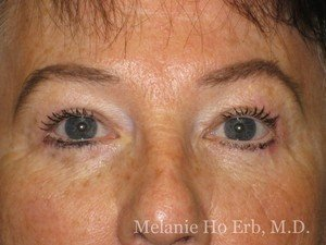 Patient Photo 01.2 Upper Blepharoplasty After of Dr. Melanie Ho Erb