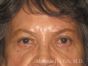 Patient 01.2 Brow Lift Before of Dr. Melanie Ho Erb