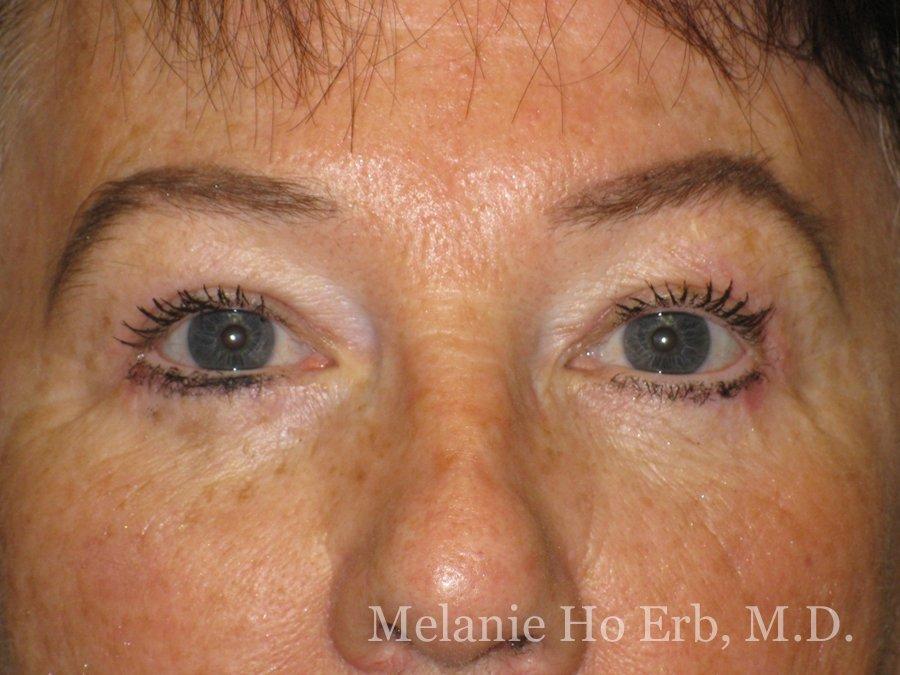 Patient Photo 01.2 Upper Blepharoplasty After of Dr. Melanie Ho Erb