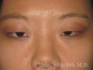 Before Photo of Asian Blepharoplasty Patient 02.1 of Dr. Melanie Ho Erb