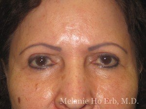 Patient Photo 02.2 Lower Blepharoplasty After of Dr. Melanie Ho Erb