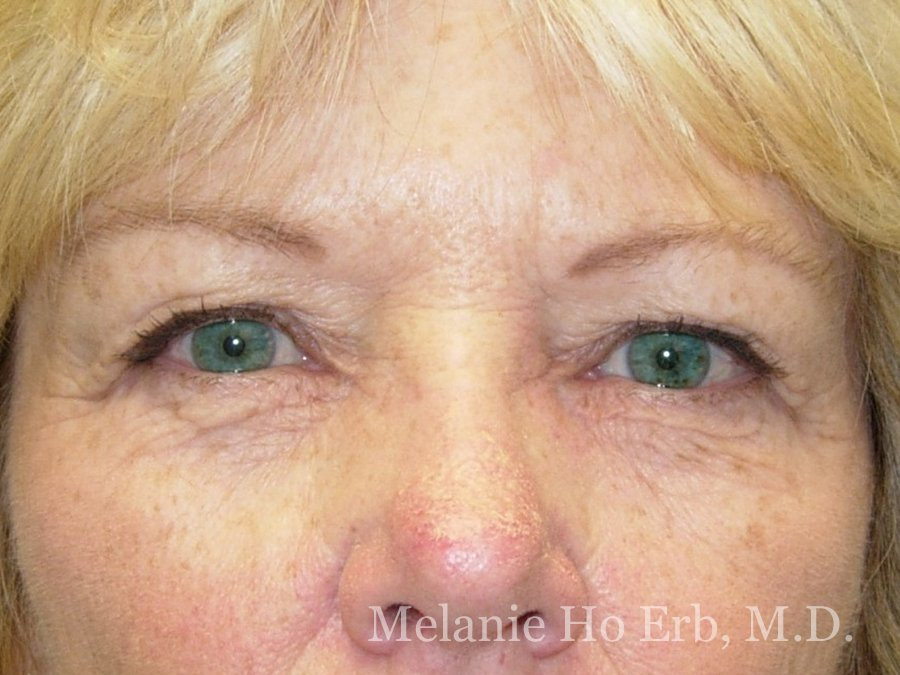 Patient Photo 03.1 Lower Blepharoplasty Before of Dr. Melanie Ho Erb