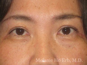 After Photo of Asian Blepharoplasty Patient 03.2 of Dr. Melanie Ho Erb