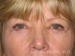 Patient Photo 03.2 Lower Blepharoplasty After of Dr. Melanie Ho Erb