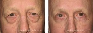 Small combined before and after image of Dr. Melanie Ho Erb's patient of Lower Blepharoplasty
