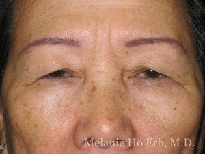 Before Photo of Asian Blepharoplasty Patient 04.1 of Dr. Melanie Ho Erb