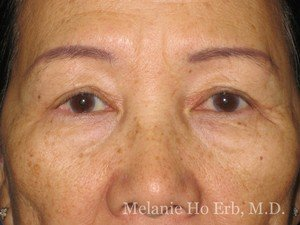 After Photo of Asian Blepharoplasty Patient 04.2 of Dr. Melanie Ho Erb
