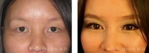 Small combined before and after image of Dr. Melanie Ho Erb's patient of Asian Blepharoplasty