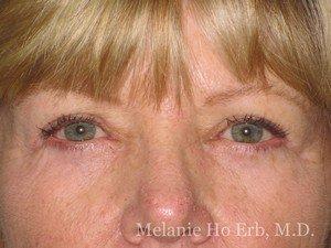 Patient Photo 05.2 Upper Blepharoplasty After of Dr. Melanie Ho Erb