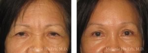 Small combined before and after image of Dr. Melanie Ho Erb's patient of Brow Lift or Forehead Lift