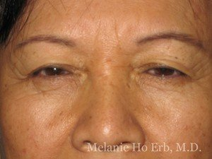 Before Photo of Asian Blepharoplasty Patient 06.2 of Dr. Melanie Ho Erb