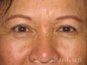 Before Photo of Asian Blepharoplasty Patient 06.1 of Dr. Melanie Ho Erb