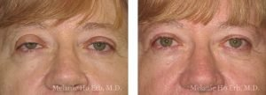 Small combined before and after image of Dr. Melanie Ho Erb's patient of Ptosis Repair