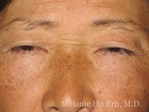 Before Photo of Asian Blepharoplasty Patient 07.1 of Dr. Melanie Ho Erb