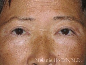After Photo of Asian Blepharoplasty Patient 07.2 of Dr. Melanie Ho Erb