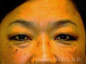 Before Photo of Asian Blepharoplasty Patient 08.1 of Dr. Melanie Ho Erb