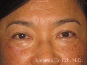 After Photo of Asian Blepharoplasty Patient 08.2 of Dr. Melanie Ho Erb