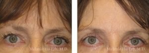 Small combined before and after image of Dr. Melanie Ho Erb's patient of Botox®Injection