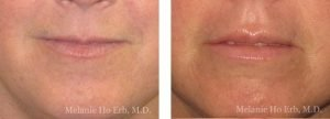 Small combined before and after image of Dr. Melanie Ho Erb's patient of Filler Injection