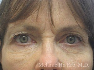 Patient Photo 10.1 Lower Blepharoplasty Before of Dr. Melanie Ho Erb