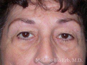 Patient Image 10.1 Upper Eyelild Blepharoplasty Woman of Dr. Melanie Ho Erb
