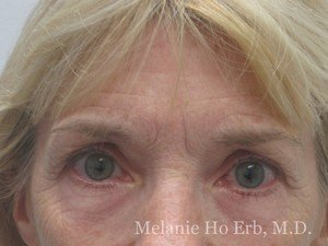 Patient 10.1 Brow Lift Before of Dr. Melanie Ho Erb