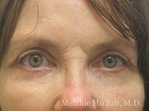 Patient Photo 10.2 Lower Blepharoplasty After of Dr. Melanie Ho Erb