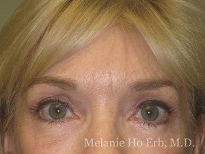 Patient 10.2 Brow Lift After of Dr. Melanie Ho Erb