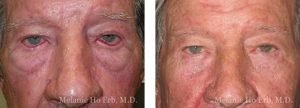 Small combined before and after image of Dr. Melanie Ho Erb's patient of Ectropion Repair