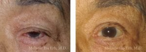 Small combined before and after image of Dr. Melanie Ho Erb's patient of Entropion Repair