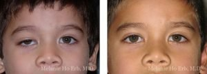 Small combined before and after image of a pediatric patient of Melanie Ho Erb, M.D.