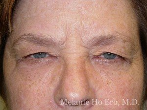 Patient Photo 15.1 Upper Blepharoplasty Before Woman of Dr. Melanie Ho Erb