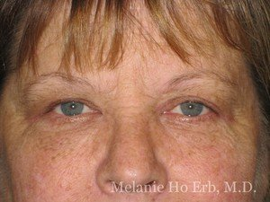Patient Photo 15.2 Upper Blepharoplasty Woman After of Dr. Melanie Ho Erb