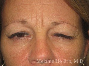 Patient Photo 16.1 Upper Blepharoplasty Woman Before of Dr. Melanie Ho Erb
