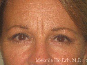 Patient Image 16.2 Upper Blepharoplasty Woman After of Dr. Melanie Ho Erb