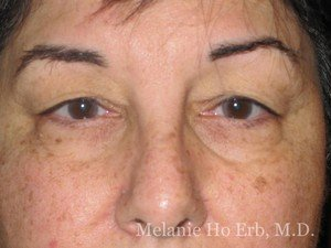 Patient Photo 20.1 Upper Blepharoplasty Woman Before of Dr. Melanie Ho Erb