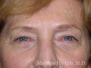 Patient 20.1 Brow Lift Before of Dr. Melanie Ho Erb
