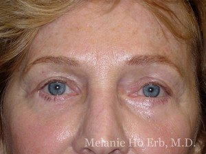 Patient 20.2 Brow Lift After of Dr. Melanie Ho Erb