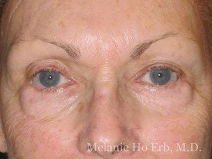 Patient Photo 21.1 Lower Blepharoplasty Before of Dr. Melanie Ho Erb