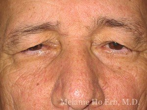 Patient 21.2 Brow Lift Before of Dr. Melanie Ho Erb