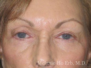 Patient Photo 21.2 Lower Blepharoplasty After of Dr. Melanie Ho Erb