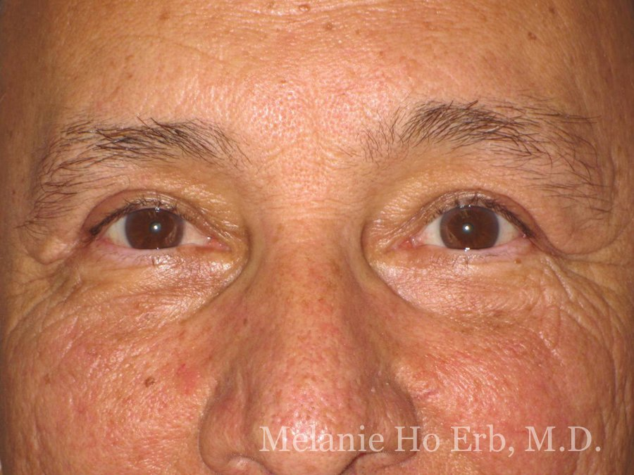 Patient 21.2 Brow Lift After of Dr. Melanie Ho Erb