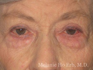 Patient Photo 22.1 Lower Blepharoplasty Before of Dr. Melanie Ho Erb