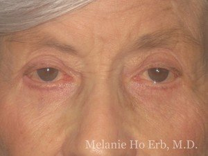 Patient Photo 22.2 Lower Blepharoplasty After of Dr. Melanie Ho Erb